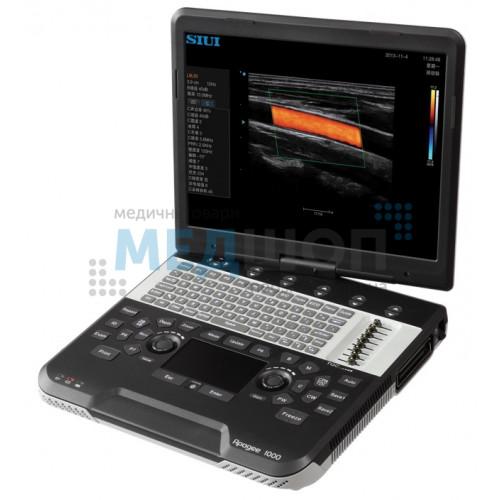 Портативная ультразвуковая система SIUI Apogee 1000 | УЗИ аппараты