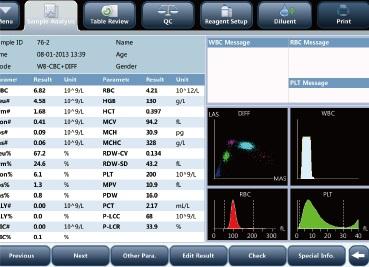 Автоматический гематологический анализатор Mindray BC-5150 - дисплей