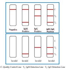 Метод тестирования: Тест на антитела к вирусу SARS-CoV-2
