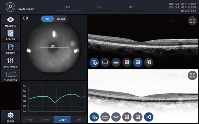Спектральный оптико-когерентный томограф HUVITZ HOCT-1/1F