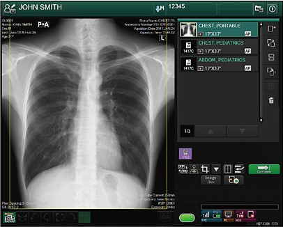 Палатный рентген Fujifilm FDR GO plus